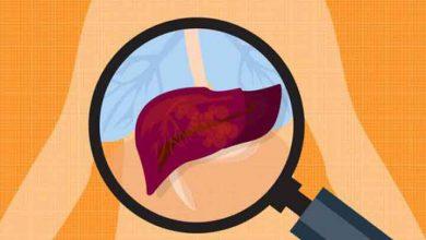 تصویر از سم زدایی بدن از مواد مخدر | تعویض خون برای ترک اعتیاد